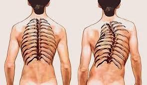 Gejala Kelainan Bentuk Tulang Belakang S