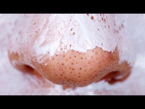 Menghilangkan Komedo Dengan Fasta Gigi